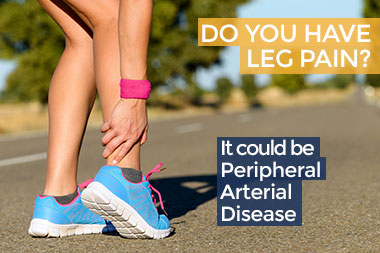PAD Peripheral Vascular Disease arterial treatment leg pain miami aventura